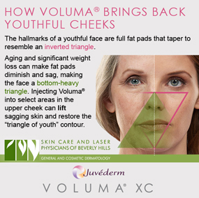Our dermatologists in Beverly Hills inject Voluma to the upper cheeks to enhance youthful contours.