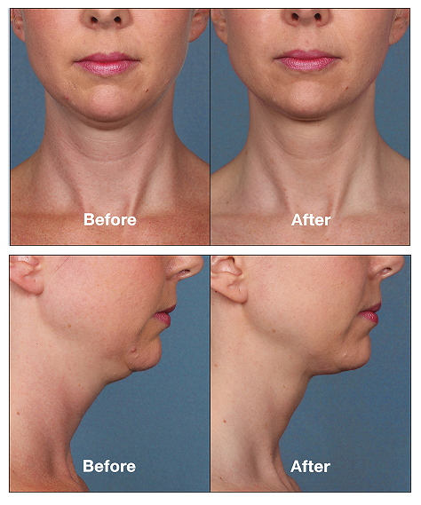 Kybella before after patient2