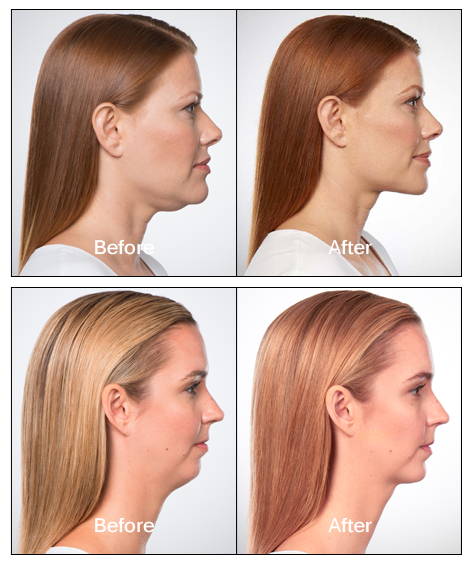 Kybella before after patient1