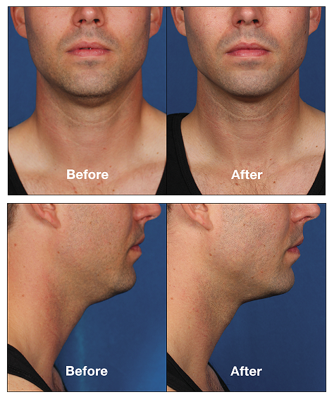 Kybella before after patient3