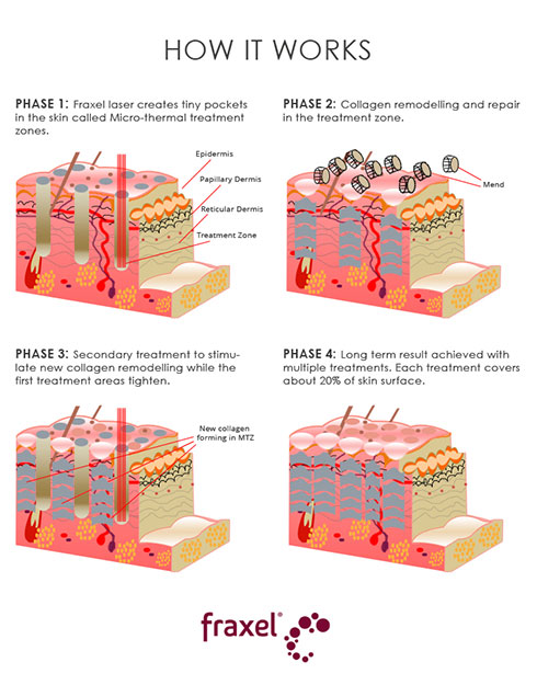 Fraxel® Dual Laser works in phases by targeting the surface and inner layers of the skin, encouraging collagen production for skin rejuvenation.