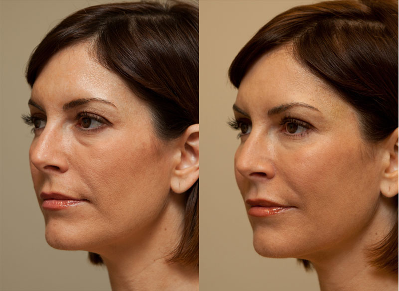 Skin Care And Laser Physicians of Beverly Hills | Combination