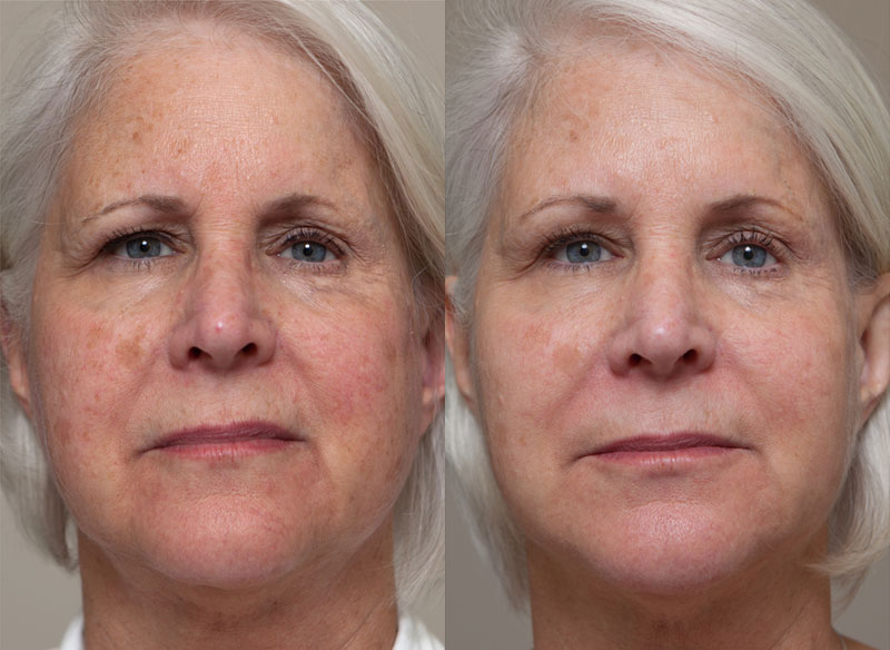Rosacea laser treatment cpt