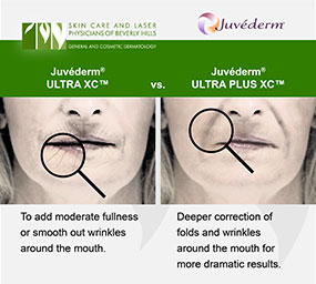 Discover what ULTRA XC and ULTRA Plus XC have in common and what sets them apart in the Juvederm family at the Los Angeles area's Skin Care and Laser Center of Beverly Hills.
